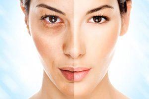 Peeling doux : exfolier la peau en douceur