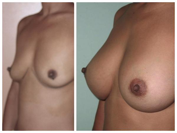 resultat-protheses-mammaires-avant-apres